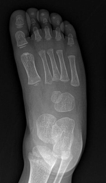 Back   Gallery F...Xray Of Childs Foot