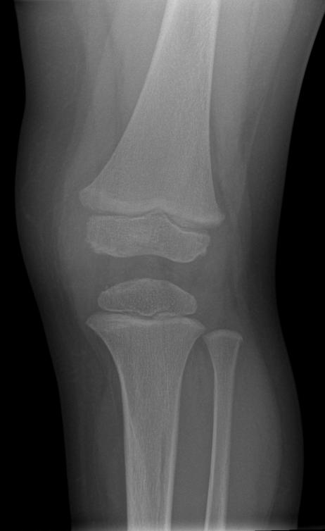 Normal bones 2 yr ccuart Images